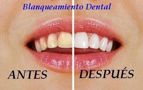 como se hace un blanqueamiento dental
