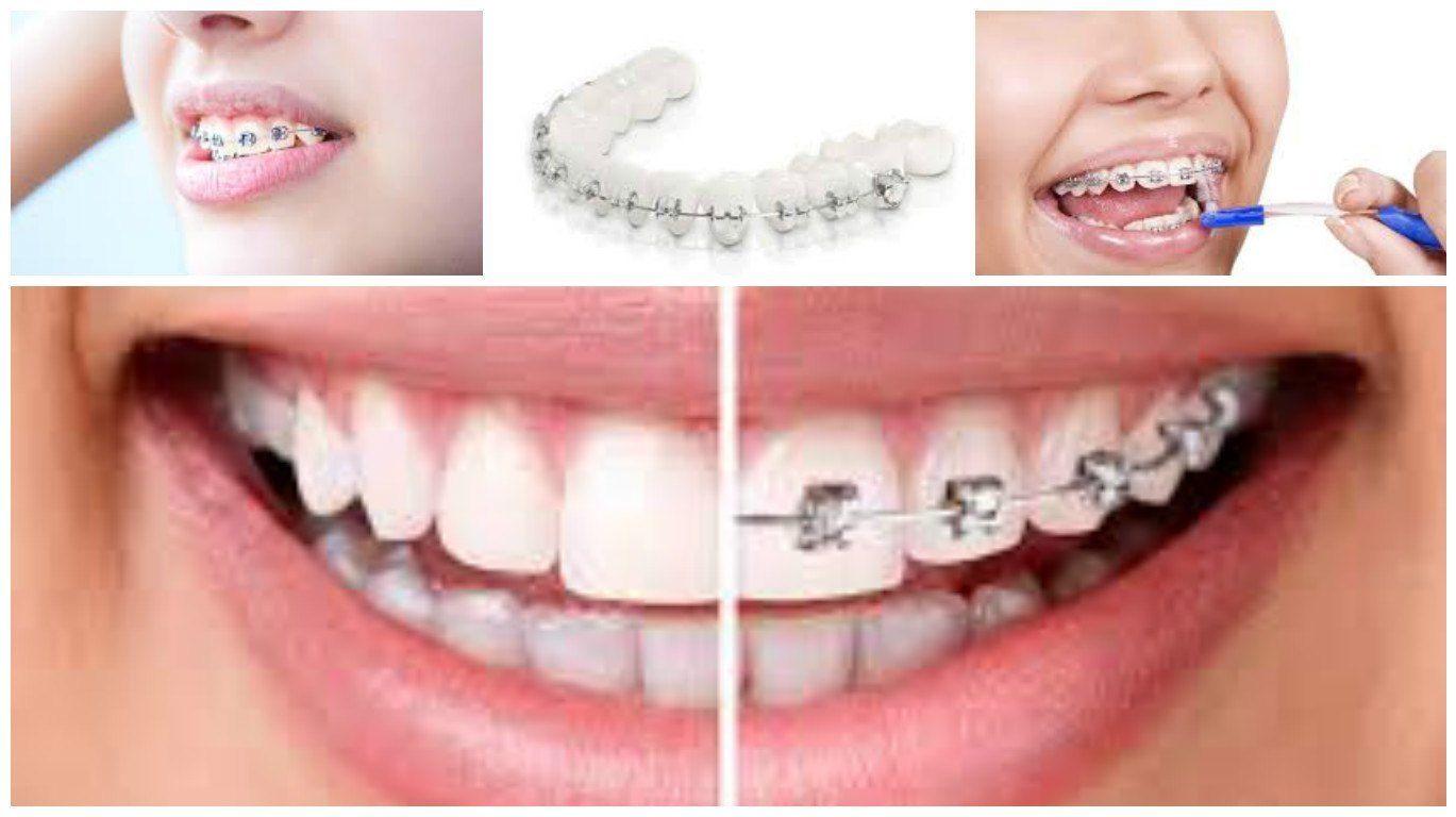 lavado y cuidados de ortodoncia